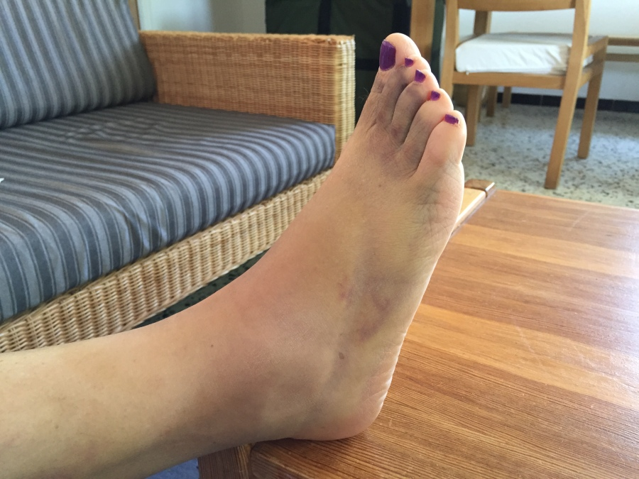 swelling down, bruising all over the foot, toes, leg
